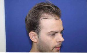 hajbeültetés Klinika